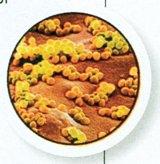 Evitaţi capcana antibioticelor!