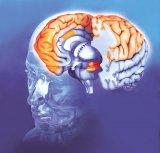 Preveniţi atacul cerebral!
