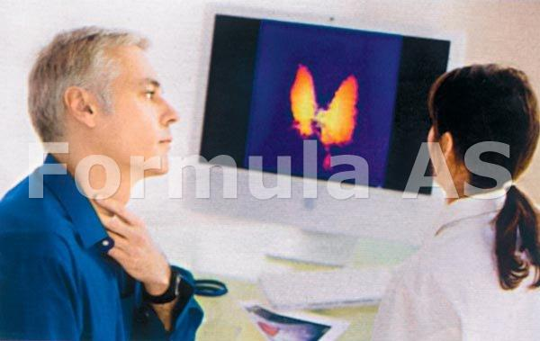 fibrilatii ale inimii